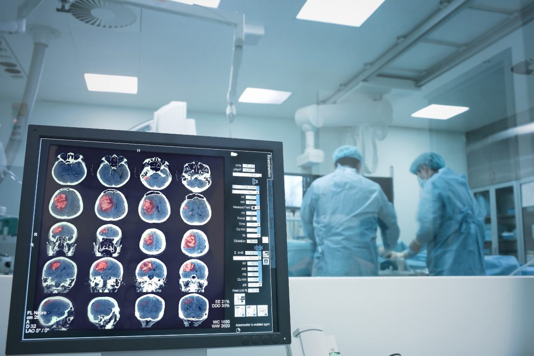 Image of stroke surgery