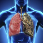 lung_cancer_nonsmokers_000044502606_Large
